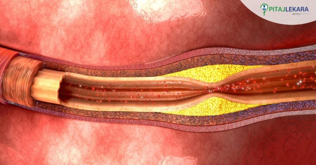 arteroskleroza . kako povećati prohodnost krvnih sudova.