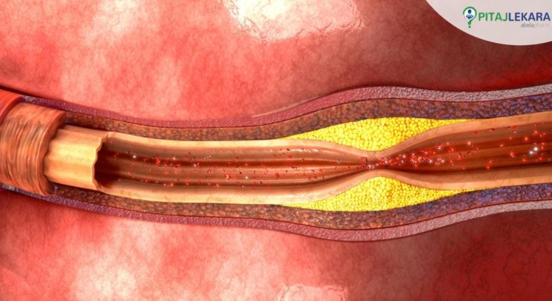 Znate li koliko je opasna ateroskleroza?